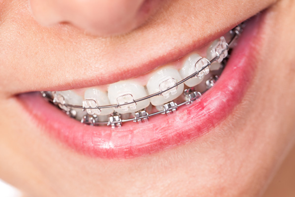 Children And Orthodontics Part 1 Orthoexcellence