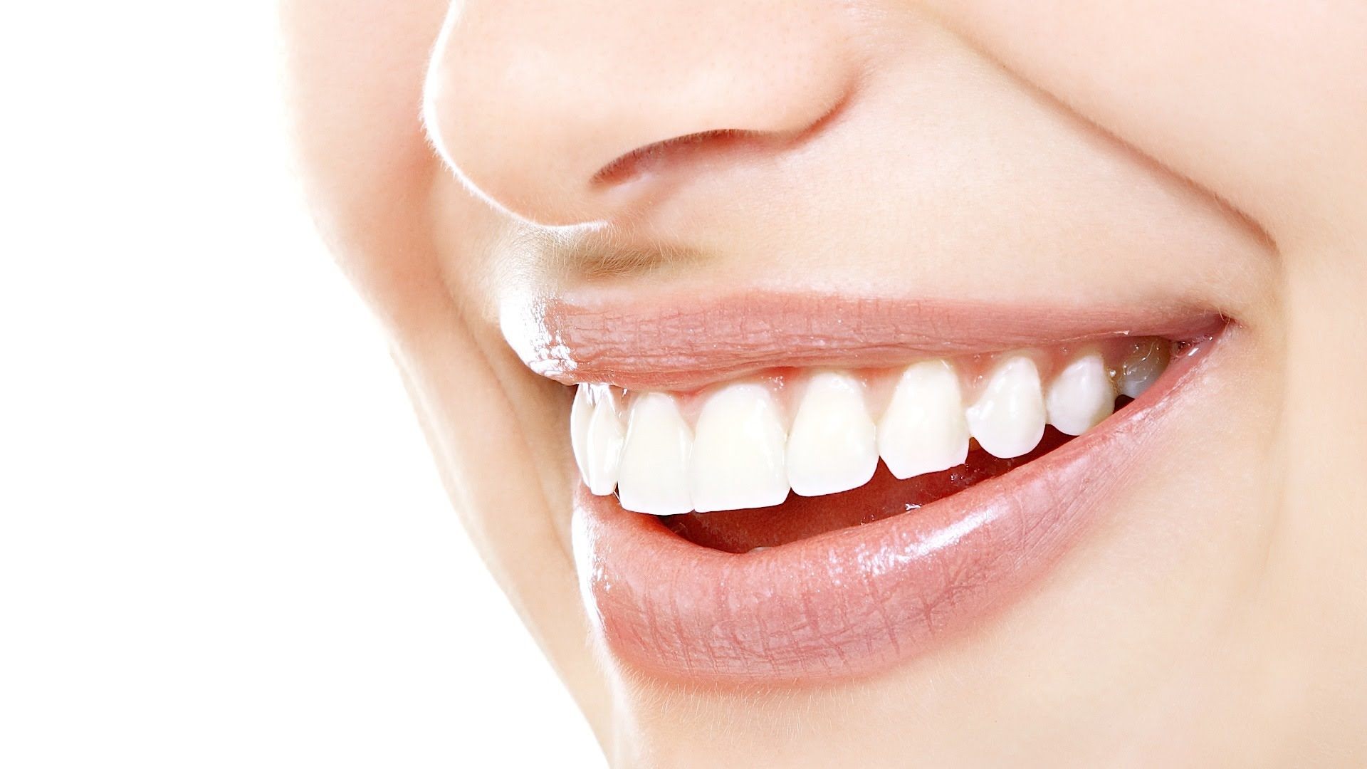 Smile with Braces, Newcastle, braces, dentist near me,Dentist, dentist Newcastle