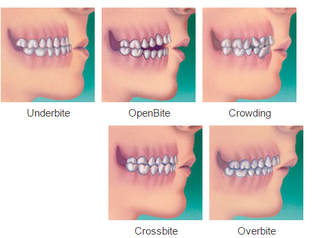 Orthodontic treatment from Orthodontic Excellence can effectively treat all type of bites.