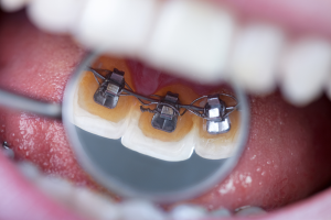 braces in puyallup wa