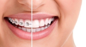 smile with braces 2