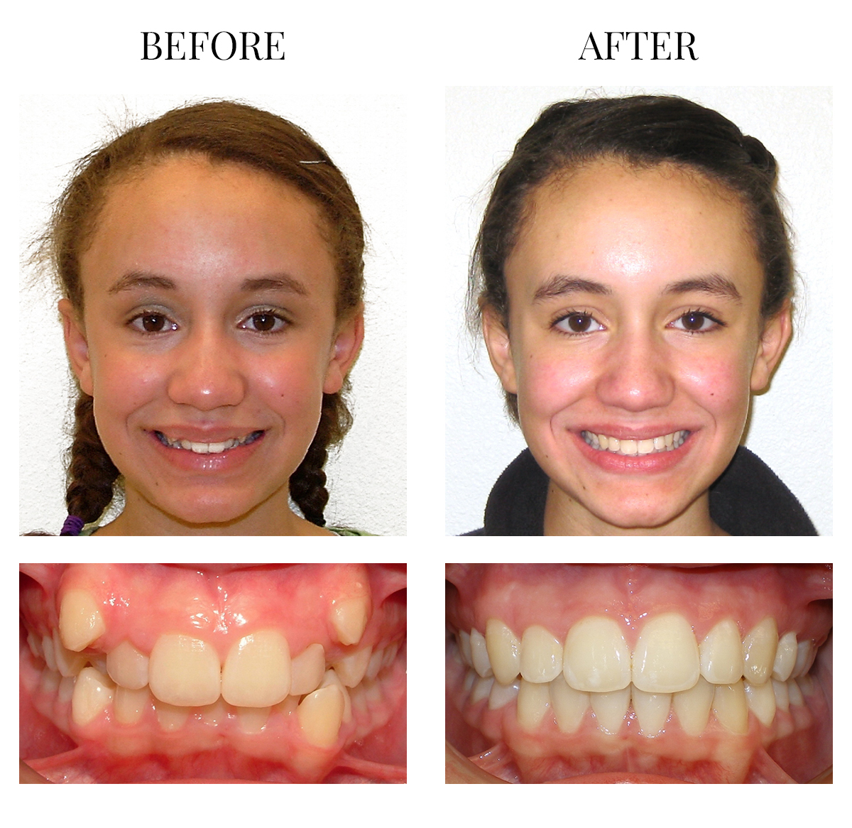 Best Dentist Near Me >> Patients Gallery - Best Orthodontist in ‎Puyallup WA