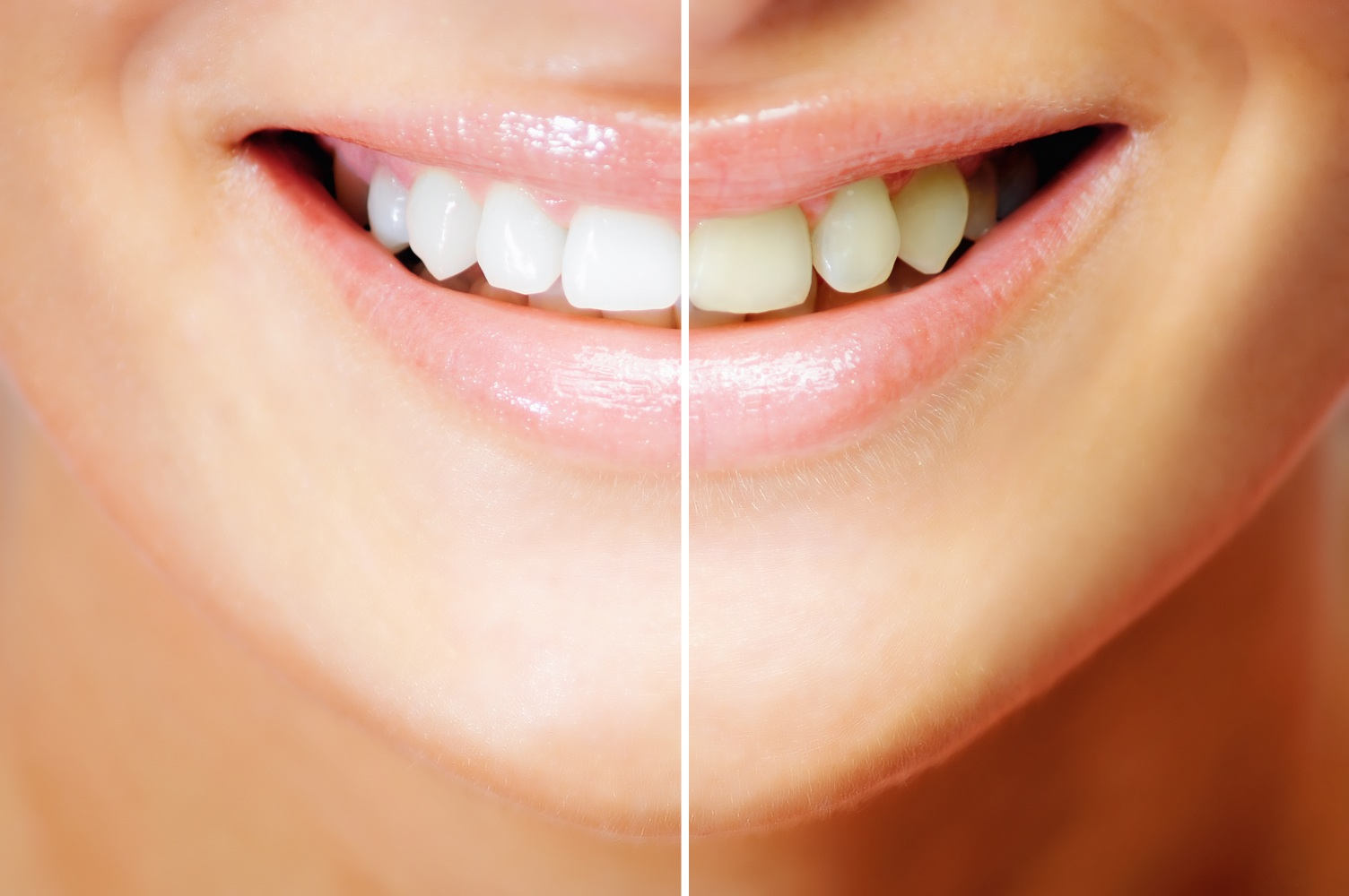 How Does Tooth Whitening In Bellevue Works Orthoexcellence
