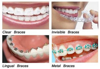 Different types of orthodontic braces