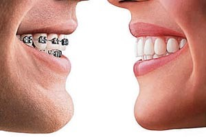 Traditional braces vs. Invisalign aligners