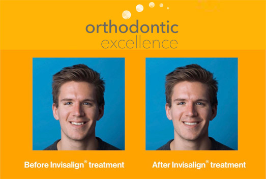 Top Orthodontist for Braces & Invisalign in Puyallup WA 98373